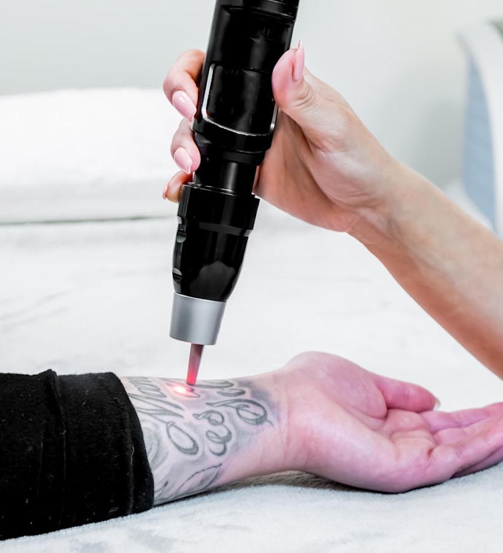 laser tattoo removal cork