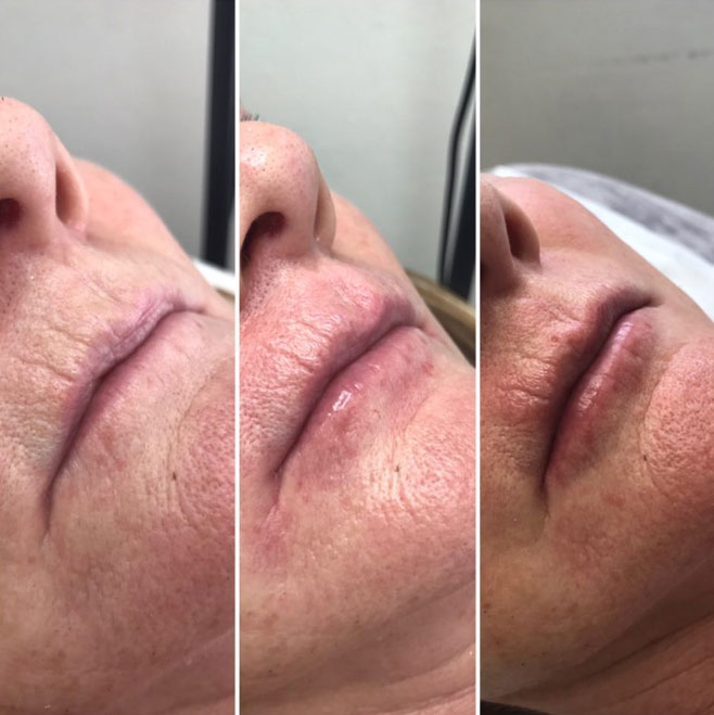 Lip Rejuvenation with Mesotherapy Treatment